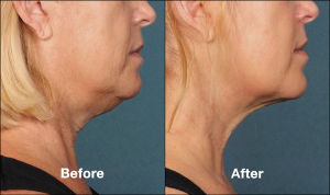 Kybella Injections for Chin Fat Reduction Cost | Encino | Calabasas