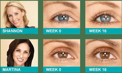 Latisse Eye Lash Growth Cost | Los Angeles, Encino ...